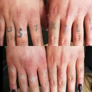 Удаление татуировок на руках